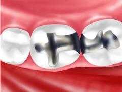「原因不明の身体のかゆみ」銀歯が原因のかもしれません