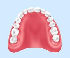 保険適用内の入れ歯