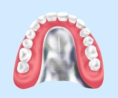 自費の入れ歯(保険適用外:金属床)