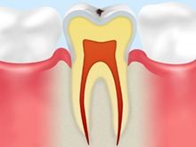 CO:ごく初期の虫歯
