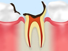 C3:神経の虫歯