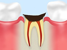 C4:末期の虫歯